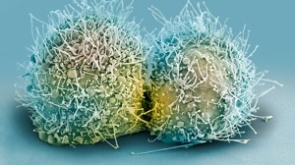 Celulas Hela
